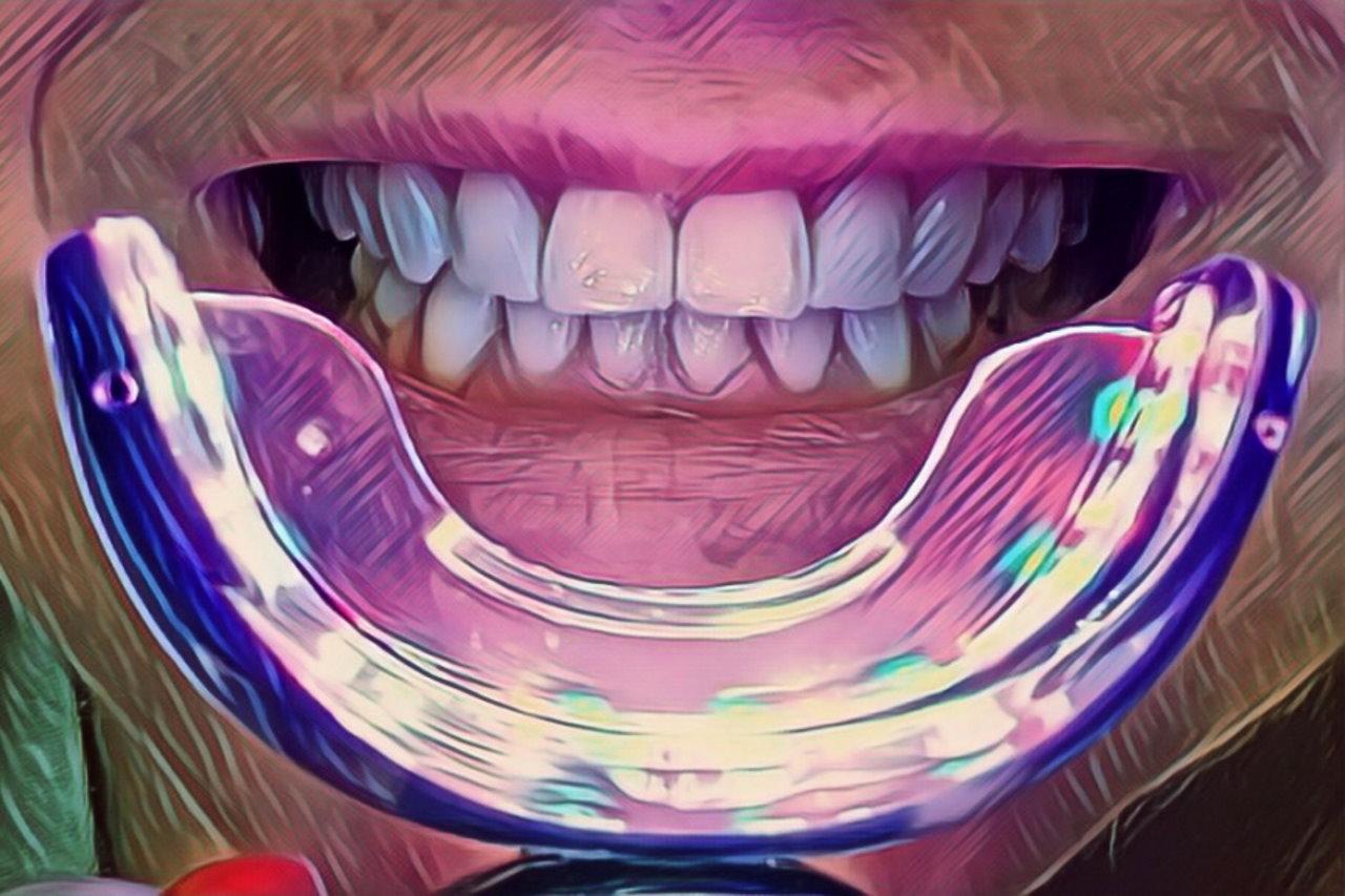 Phonebleaching – hit czy kit? Popularne wśród celebrytów wybielanie zębów